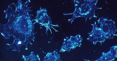 Pesquisadores brasileiros criam biossensor de baixo custo que detecta câncer de pâncreas com maior precisão