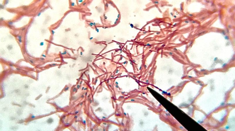 bactéria dos resíduos da fabricação da farinha de mandioca