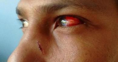 violência contra indígenas