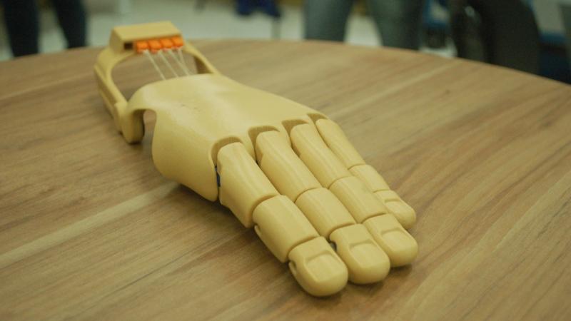 Jovem ganha – de graça - prótese de mão feita em impressora 3D