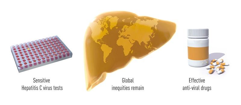 Cientistas que identificaram o vírus transmissor da Hepatite C ganham o Nobel de Medicina 2020