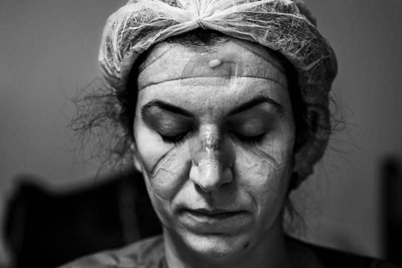 Brasileiro vence prêmio internacional de fotografia com retrato de médica após plantão contra a covid-19